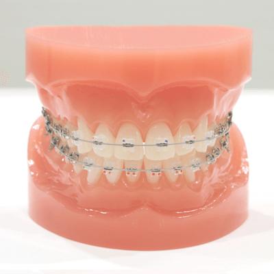 歯科矯正器具