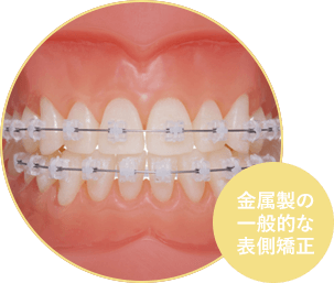 一般的な歯科矯正、マルチブラケット