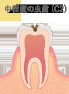 中程度の虫歯